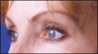 Woman with crows feet after Botox