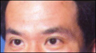 Man with forehead lines after Botox